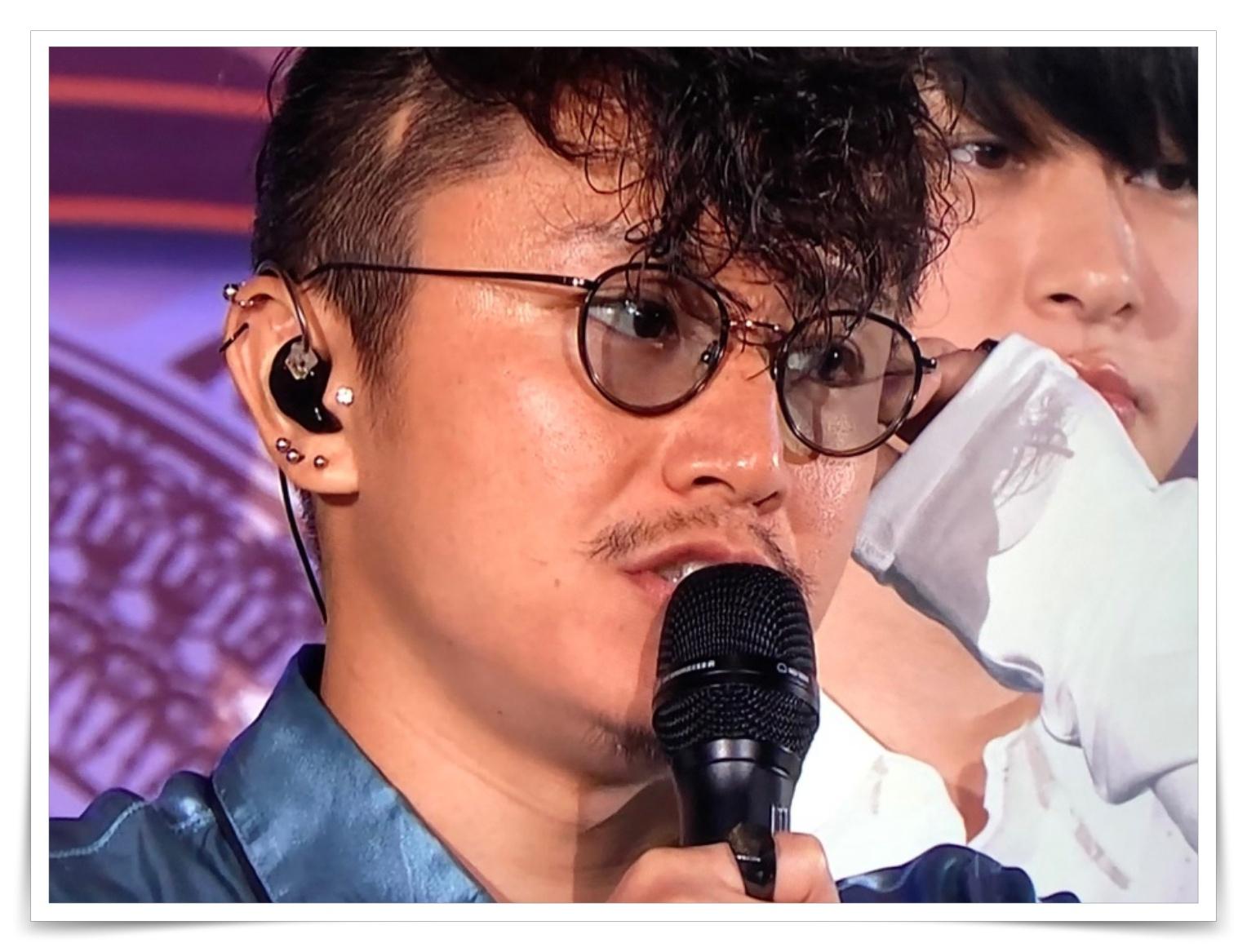安田章大の髄膜腫後遺症で色つきメガネのサングラス画像