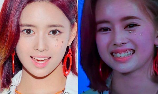 リマ歯並びの比較画像
